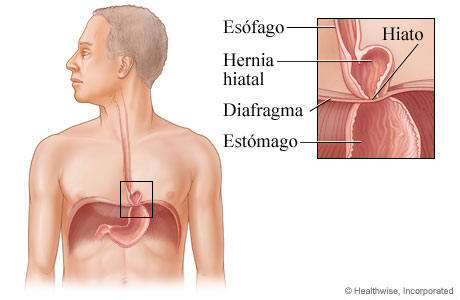 medicacion para la gastritis